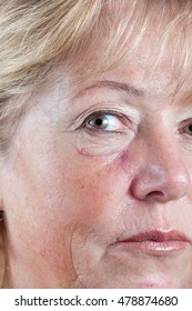 Mature woman with gradually fading scar three weeks after Mohs surgery for Basal Cell Carcinoma - closeup