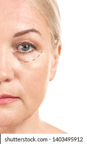 Mature woman with marks on her face against white background, closeup. Concept of plastic surgery