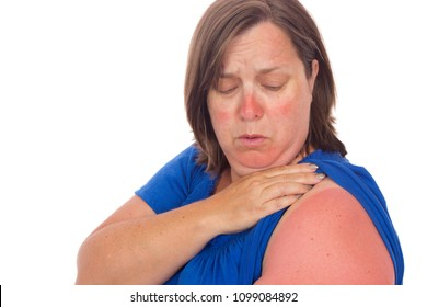 A mature woman with sun burn lines.