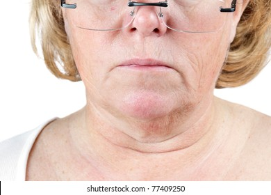 Mature woman's lower face and neck showing the aging process