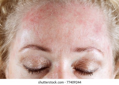 Mature woman's very dry & peeling skin