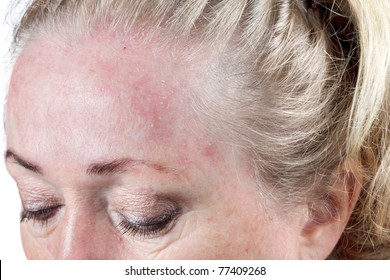 Mature woman's very dry skin