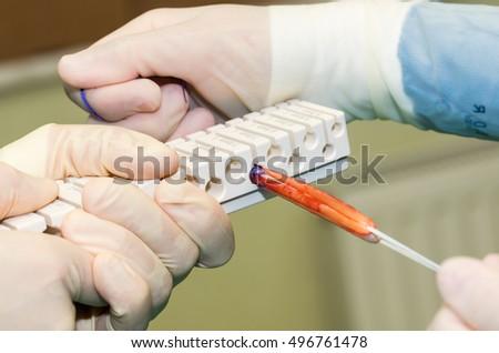 Measuring Semitendinosus Tendon Gracilis Muscle ACLR Stock Photo ...
