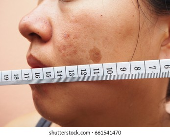 Measuring tape with melasma on woman face, Skin problems, unhealthy skin, Beauty and cosmetics concept