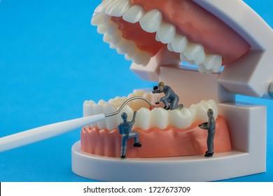 Mechanisches Modell Miniatur Menschen reinigen Zahnmodell als medizinisches und medizinisches Konzept, regelmäßige Kontrollen sind von wesentlicher Bedeutung für die Mundgesundheit auf blauem Hintergrund. Zahnarztanlage.skalers.