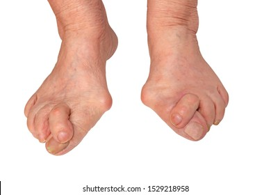 Medecin, valgus bunion, leg with deformation valgus hallux (Bunion), consequence of failure of treatment, isolated on white background with clipping path, place for text