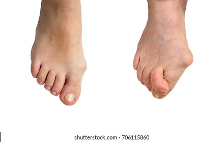 Medetcin, valgus bunion, Initial stage and advanced stage of the disease , leg with deformity valgus hallux (Bunion), the consequence of refusal of treatment, space for text