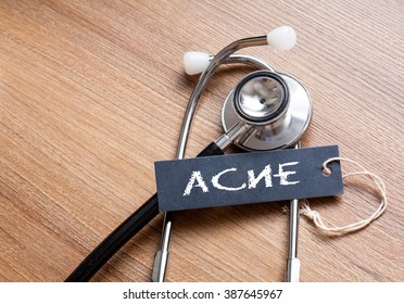 Medical Concept- Acne word written on label tag with Stethoscope on wood background