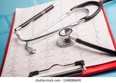 Medical concept.Stethoscope and cardiogram chart diagnostic.