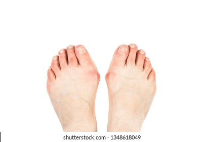 Medical condition called bunions(Hallux abducto valgus, hallux valgus, metatarsus primus varus)it is bump on the outside of the base of big toe. Close up view of 50 year old woman feet with bunions.