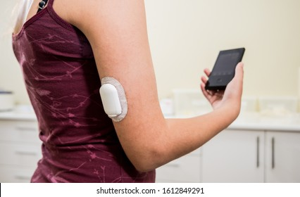 Medical device for glucose check. Continuous glucose monitoring pod. Modern wireless technology.