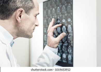 Medical diagnosis. Nice handsome experienced doctor looking at the X ray image and studying it while putting medical diagnosis