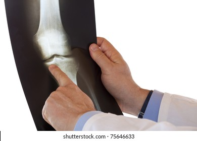Medical doctor pointing with finger at radio-graph of knee joint bone. Isolated on white background.