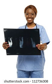 Medical expert holding patients x-ray report isolated over white background