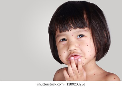 Medical and healthcare concept. Sad crying ill little girl having smallpox