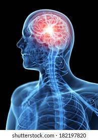 medical illustration of an acute headache