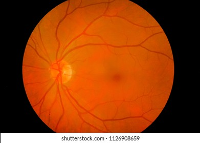 Medical image of ocular fundus, human retina