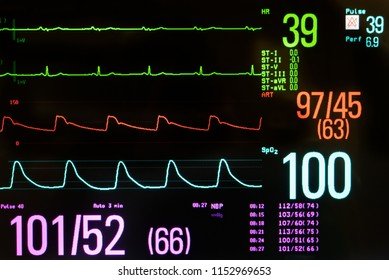 Medical monitor with bradycardia, low blood pressure and oxygen level against a black background.