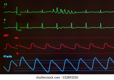 Medical monitor with green lines of an abnormal ECG showing ventricular tachycardia, a red line for the arterial blood pressure and a blue line for the oxygen saturation against a black background.