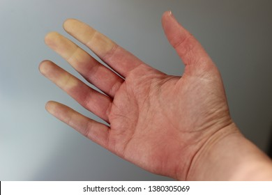 Medical picture of a women hand with raynaulds syndrome.