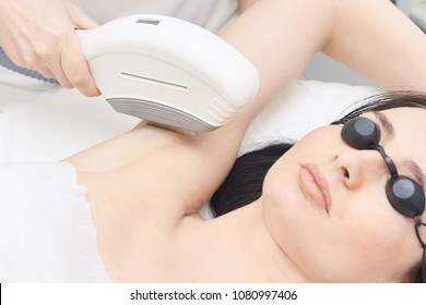 Medical procedure. Bright skin. Removing underarm hair. Laser hair removal.