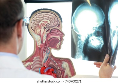 Medical professional comparing  x-ray images of skull  with functional model