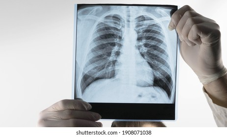 A medical professional holds an X-ray of the lungs, a doctor examines pneumonia, a respiratory disease. Pulmonary complication.