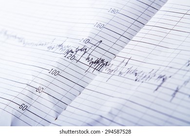 Medical records on paper in the form of peaks closeup.