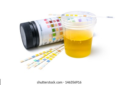 Medical report and urine test strips