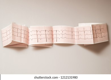 Medical research. ECG. The normal result of electrocardiography in a 3-year-old child.
