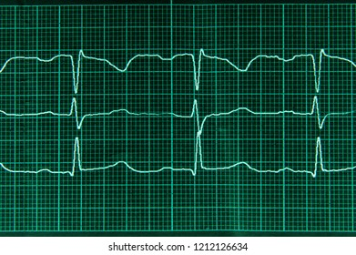 Medical research. Electrocardiography.  Normal electrocardiogram with arrhythmia elements. The heartbeat lines on the monitor screen are green.