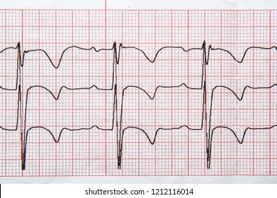 Medical research. Fragment of a normal children's electrocardiogram with arrhythmia elements.