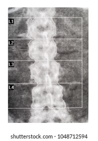 Medical scan - spine. Bone density DEXA, showing osteoporosis.