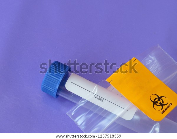 A medical specimen tube used for collecting blood, urine, or saliva in a plastic bag labeled as biohazard on a purple background with room for text (copy).