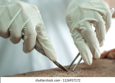 The medical students are going to use that cadaver for dissection.