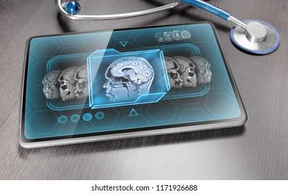 Medical tablet displaying anatomical brain scan