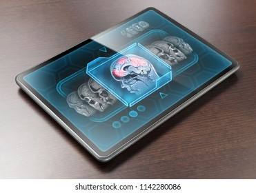 Medical tablet displaying brain activity scan