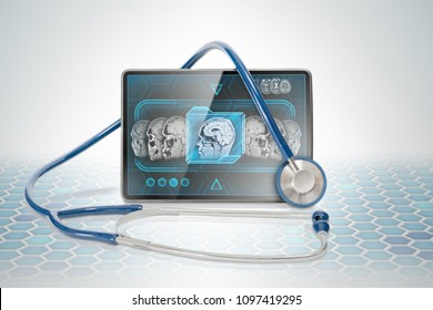 Medical tablet displaying cerebral anatomical scan