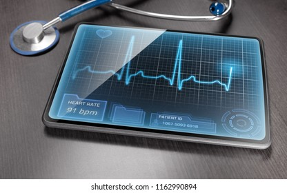 Medical tablet displaying ECG recording