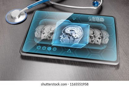 Medical tablet on wooden desk displaying scan of human brain