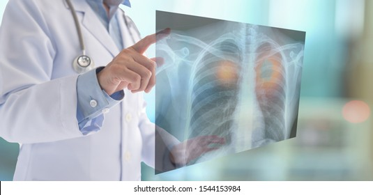 medical technology lung radiography,Pneumonia concept. radiology doctor examining at chest x ray  of patient at hospital room.