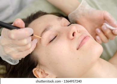 Medical treatment removal of birthmark from female patient's face. Female dermatologist surgeon using electrocautery for removing mole. Radio wave electrocoagulation remove method. Close up