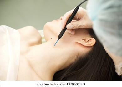 Medical treatment removal of birthmark from female patient's neck. Female dermatologist surgeon using electrocautery for removing mole. Radio wave electrocoagulation remove method. Close up