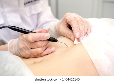 Medical treatment removal of birthmark from female patient's stomach. Female dermatologist surgeon using electrocautery for removing mole on belly. Radio wave electrocoagulation remove method