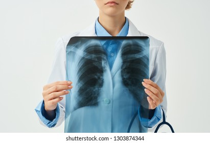 medical worker in white coat holding x-ray in hands