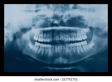 Medical X ray imaging of human teeth of a child