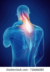 medically accurate 3d rendering of a guy with neck pain