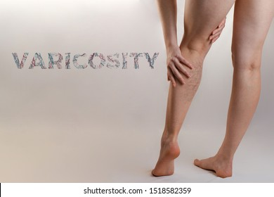Medicine and health. The concept of female varicose veins. A woman rubs her tired legs with vascular stars. Text VARICOSITY. Copy space