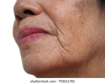 Melasma and freckle on old woman face