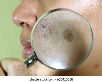 melasma on the face with magnifier , acne on the face, facial scar, melasma